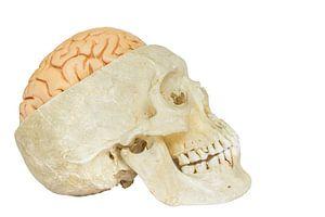 Menselijke schedel met hersenen van