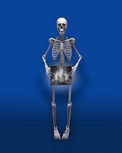 Fast nacktes Skelett