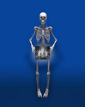Bijna naakt Skelet van Peter Hermus