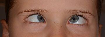 Jongen die scheel kijkt met blauwe ogen sur Natasja Tollenaar