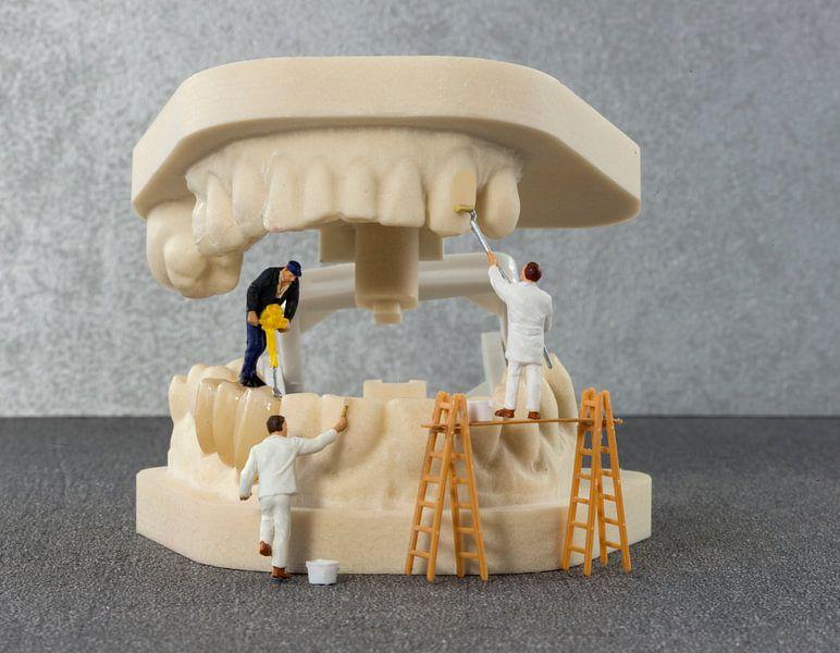 tooth reconstruction van Compuinfoto .